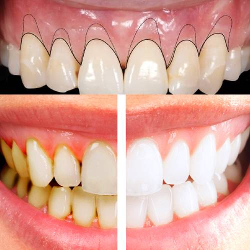 Cosmetic_gum_treatment_best_dental_clinic_in_coimbatore